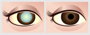 Phoenix_Eye_Doctors
