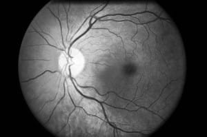 Phoenix Eye Doctors