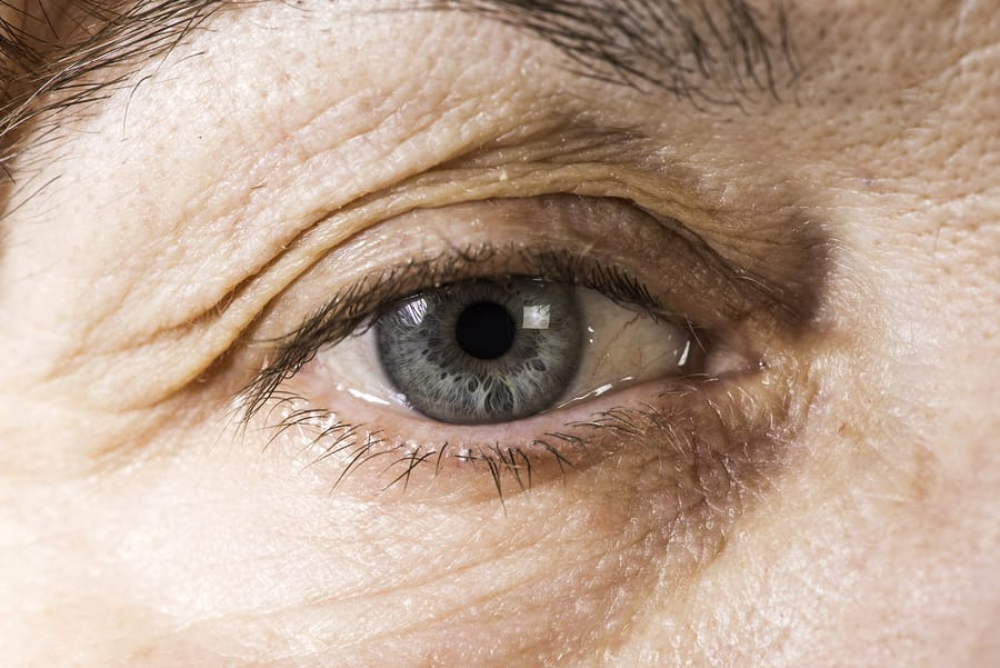 How To Care For Your Eyes As You Age