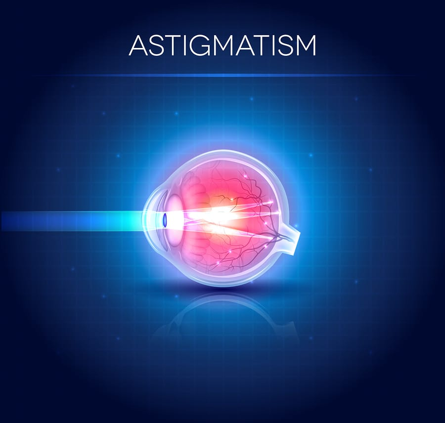 Do you suffer from Astigmatism?