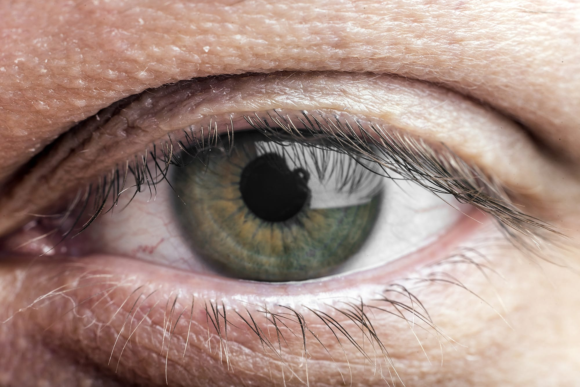 Understand Pre-Cataracts