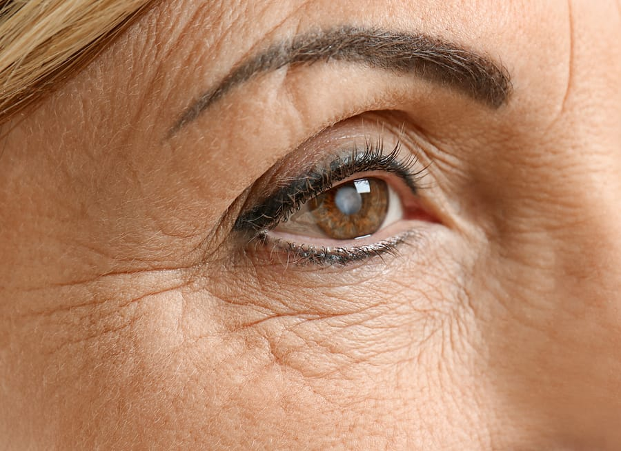 Common Questions on Cataracts