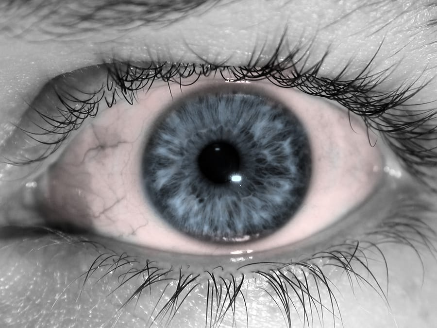 Different Types Of Pink Eye Pink Eye Treatments