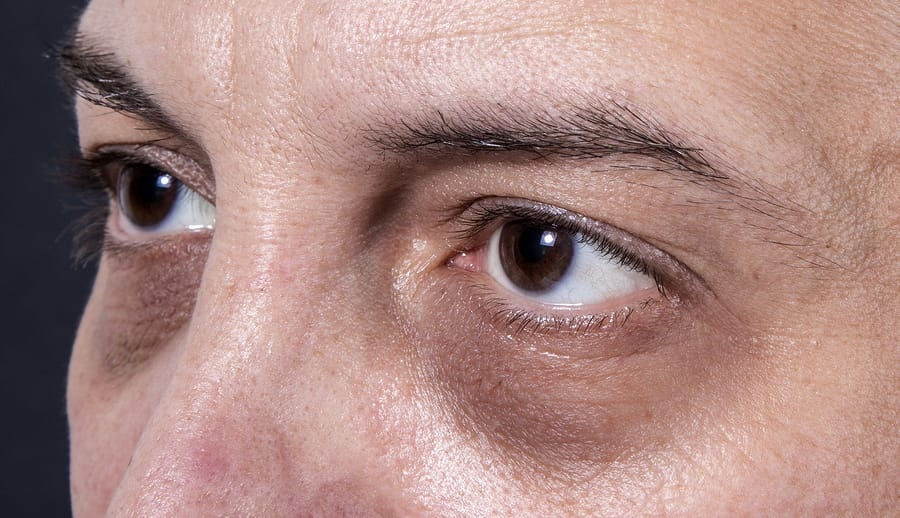 Why We Get Dark Circles Under Our Eyes | Valley Eyecare ...