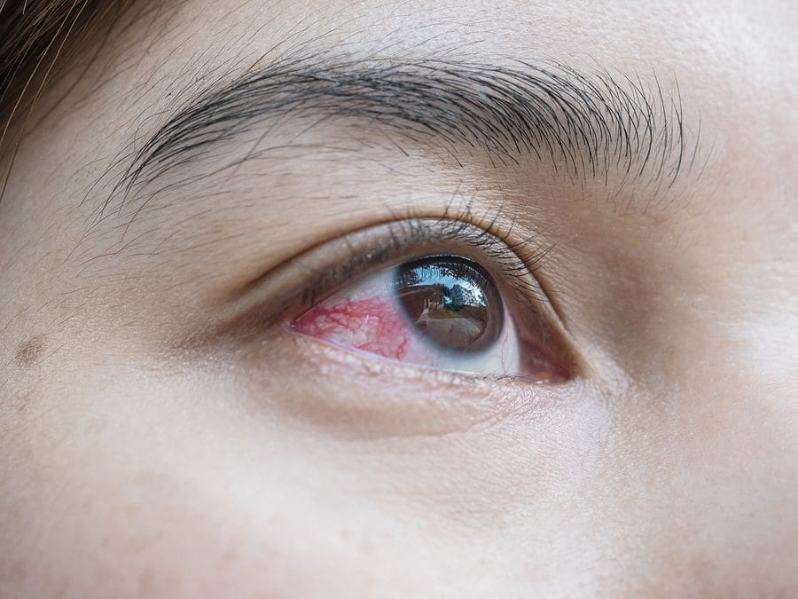 I Think I Have a Broken Blood Vessel in My Eye. What Should I Do?