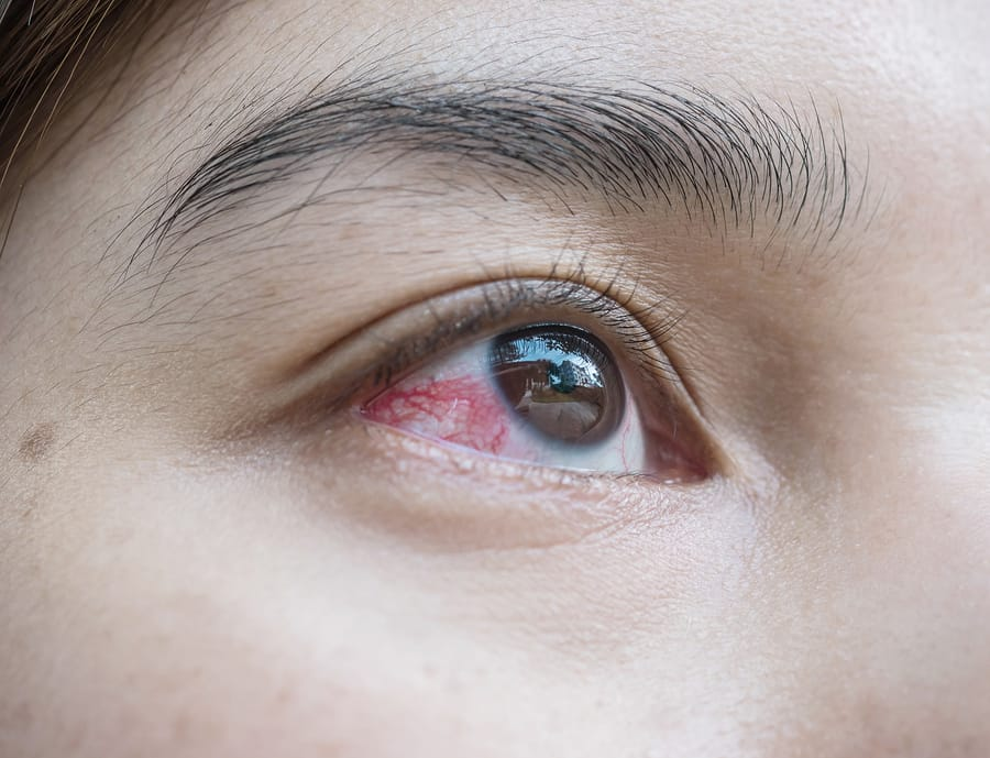 broken-blood-vessel-eye