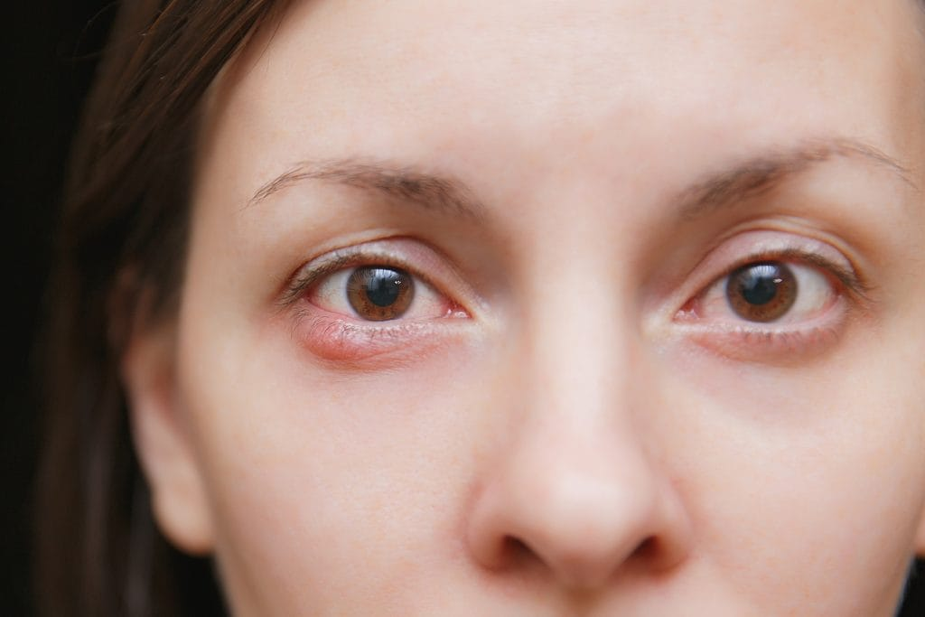Stye Care Tips Phoenix Eye Doctors
