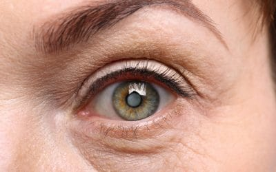 What are the Early Signs of Cataracts?