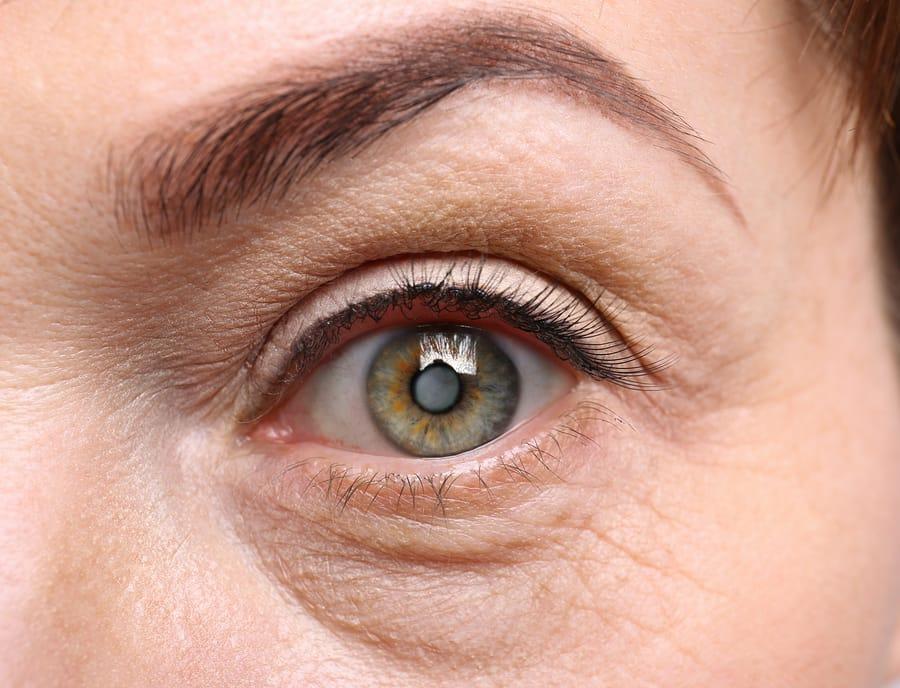Cataracts Senior Woman
