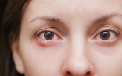 What Causes Styes and How to Avoid Them