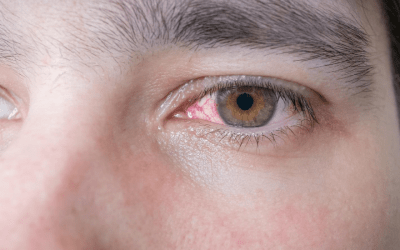 3 Critical Steps to Take If You Injure Your Eye