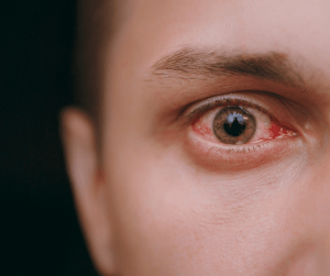 Causes and Treatments of Red Eyes