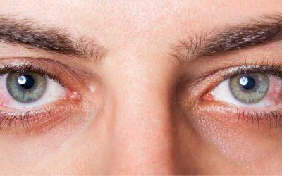 Bloodshot Eyes: Common Causes, Treatment